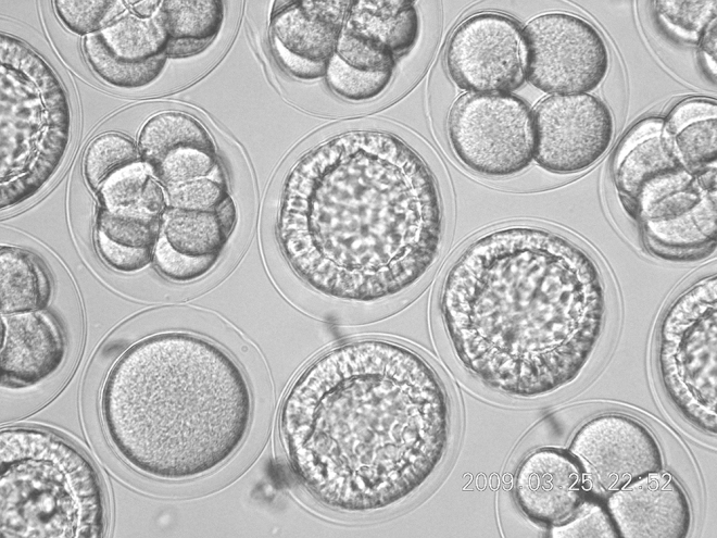 Panama_2010_48_urchin_embryos2_2009